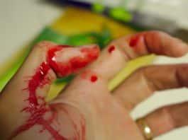 Blutende Hand